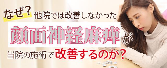 横浜駅 顔面神経麻痺